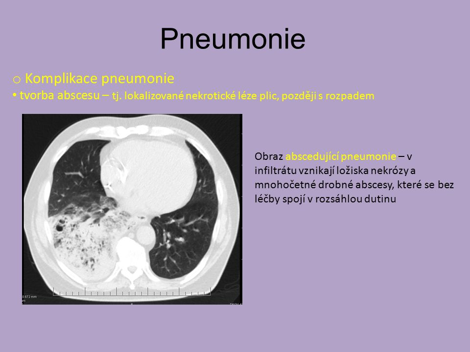Pneumonie o Komplikace pneumonie tvorba abscesu – tj. lokalizované nekrotické léze plic, později s rozpadem Obraz abscedující pneumonie – v infiltrátu