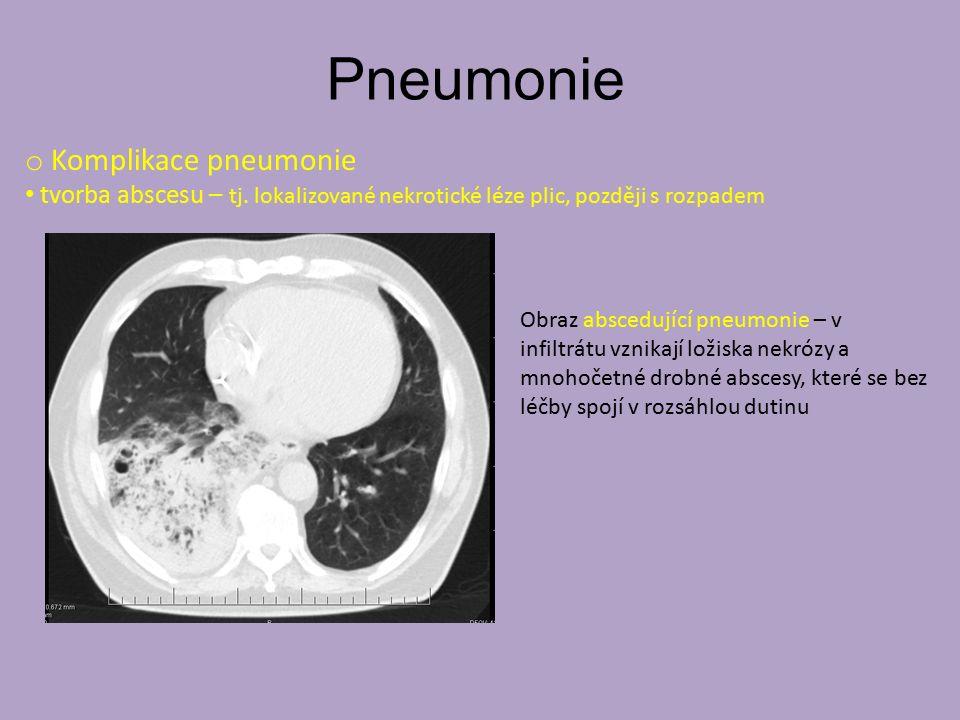 Pneumonie Antibiotika Mukolytika Antipyretika a analgetika Zvýšená hydratace (p.o.