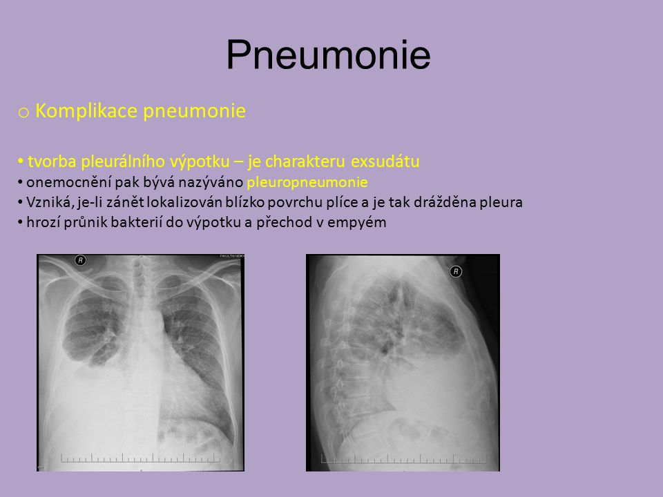 Pneumonie o Komplikace pneumonie tvorba pleurálního výpotku – je charakteru exsudátu onemocnění pak bývá nazýváno pleuropneumonie Vzniká, je-li zánět lokalizován blízko povrchu plíce a je tak drážděna pleura hrozí průnik bakterií do výpotku a přechod v empyém