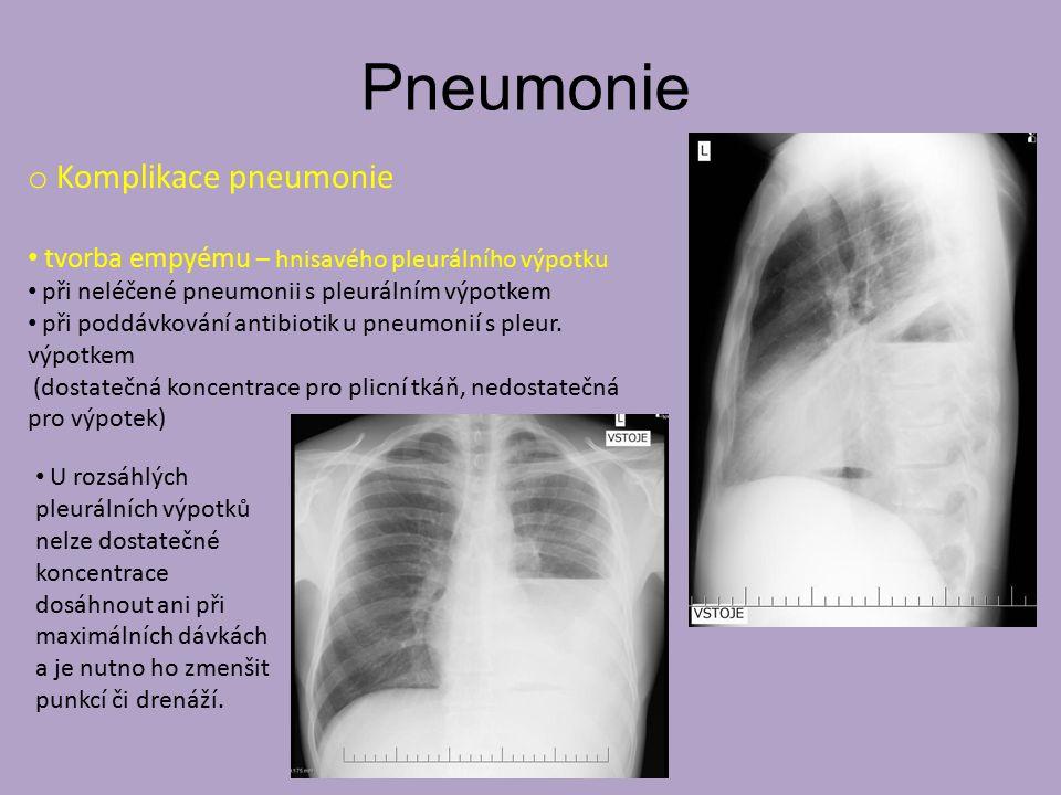 Pneumonie o Komplikace pneumonie tvorba empyému – hnisavého pleurálního výpotku při neléčené pneumonii s pleurálním výpotkem při poddávkování antibiot