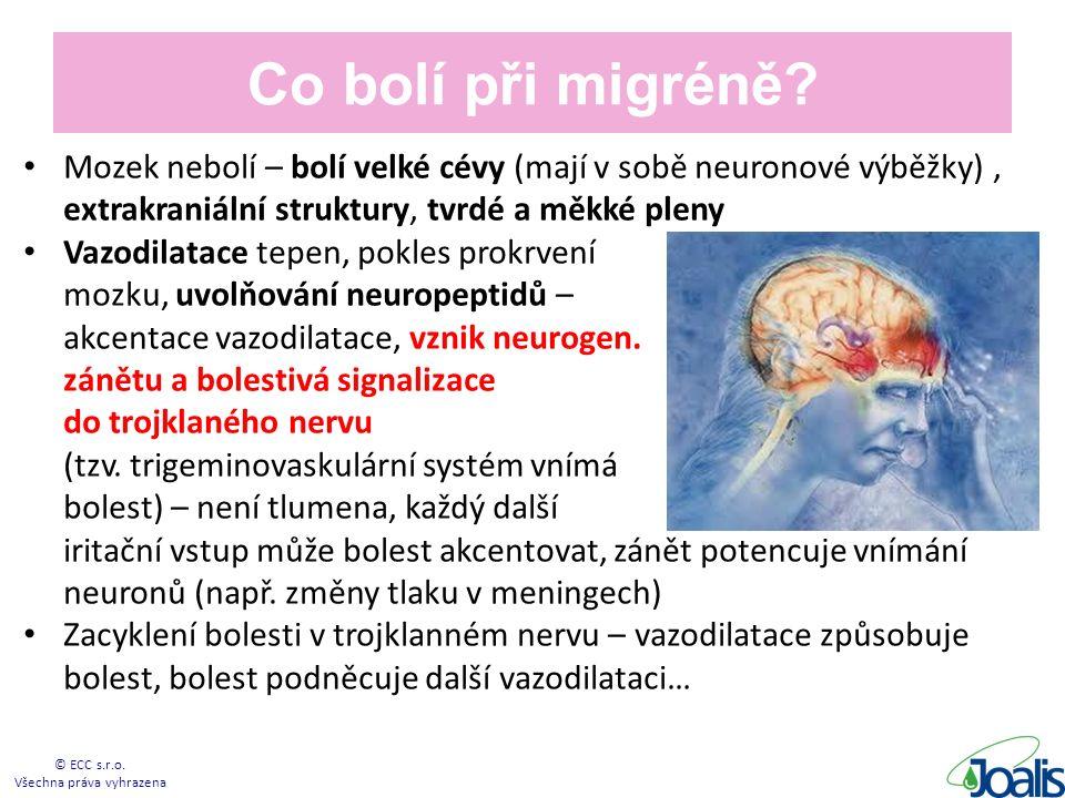 Co bolí při migréně.