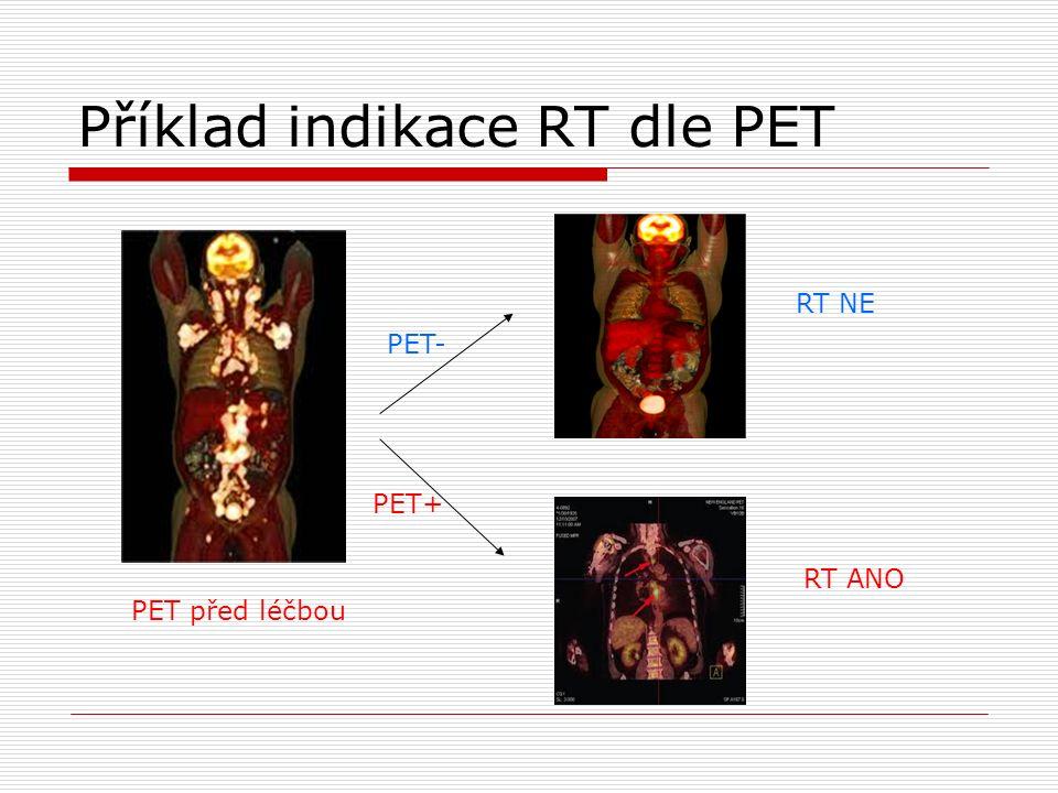 Příklad indikace RT dle PET PET před léčbou PET- PET+ RT NE RT ANO