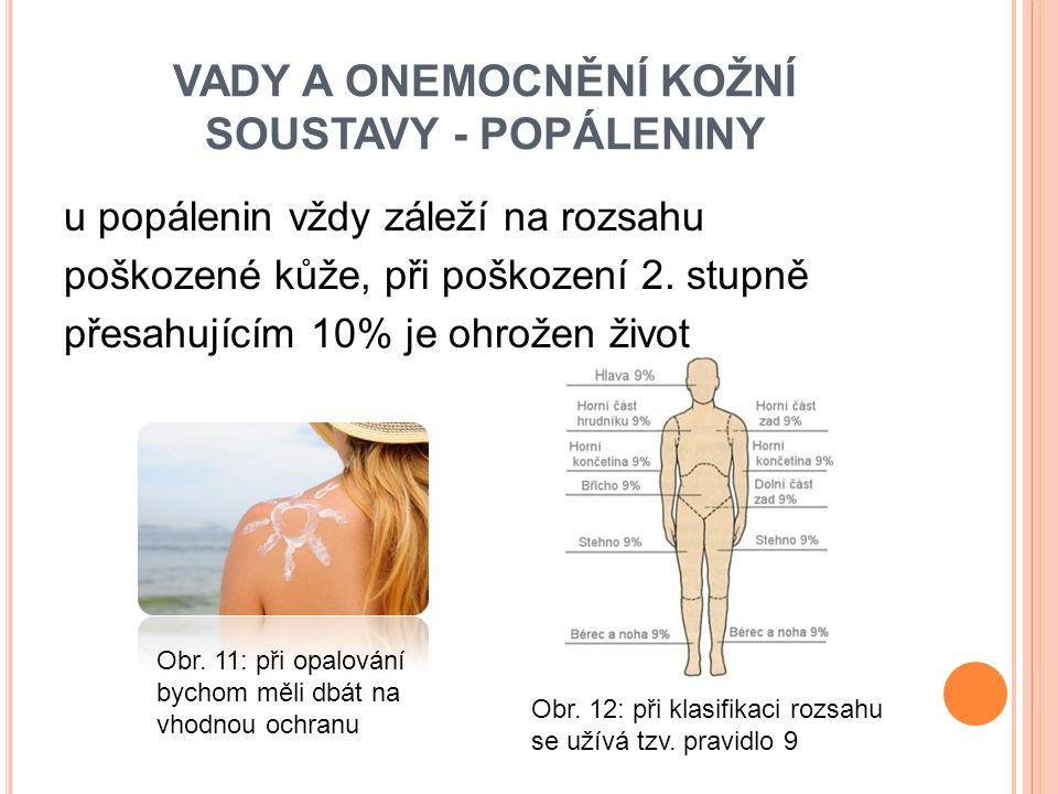 u popálenin vždy záleží na rozsahu poškozené kůže, při poškození 2.