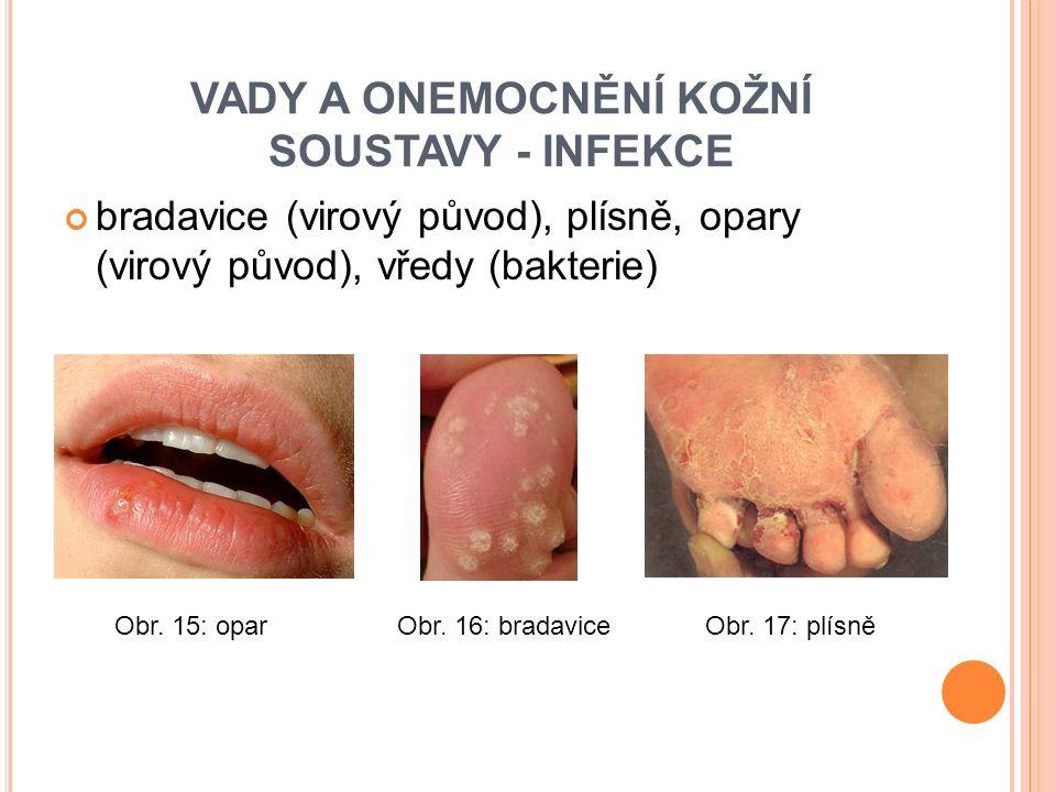 bradavice (virový původ), plísně, opary (virový původ), vředy (bakterie) VADY A ONEMOCNĚNÍ KOŽNÍ SOUSTAVY - INFEKCE Obr.