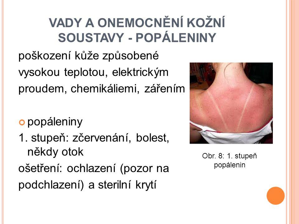 VADY A ONEMOCNĚNÍ KOŽNÍ SOUSTAVY - POPÁLENINY poškození kůže způsobené vysokou teplotou, elektrickým proudem, chemikáliemi, zářením popáleniny 1.