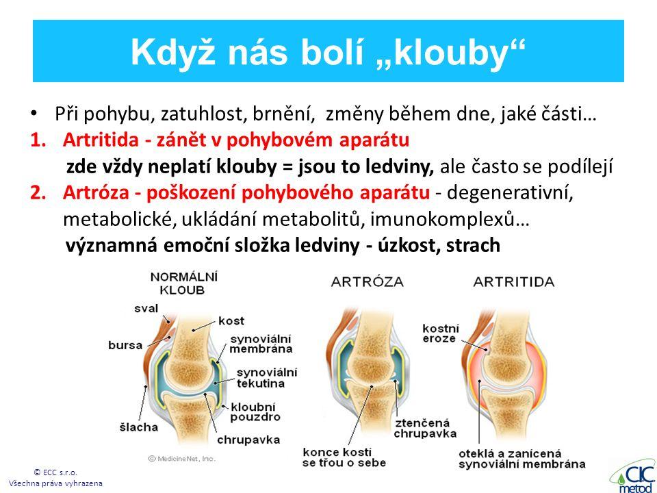 """Když nás bolí """"klouby Při pohybu, zatuhlost, brnění, změny během dne, jaké části… 1.Artritida - zánět v pohybovém aparátu zde vždy neplatí klouby = jsou to ledviny, ale často se podílejí 2.Artróza - poškození pohybového aparátu - degenerativní, metabolické, ukládání metabolitů, imunokomplexů… významná emoční složka ledviny - úzkost, strach © ECC s.r.o."""