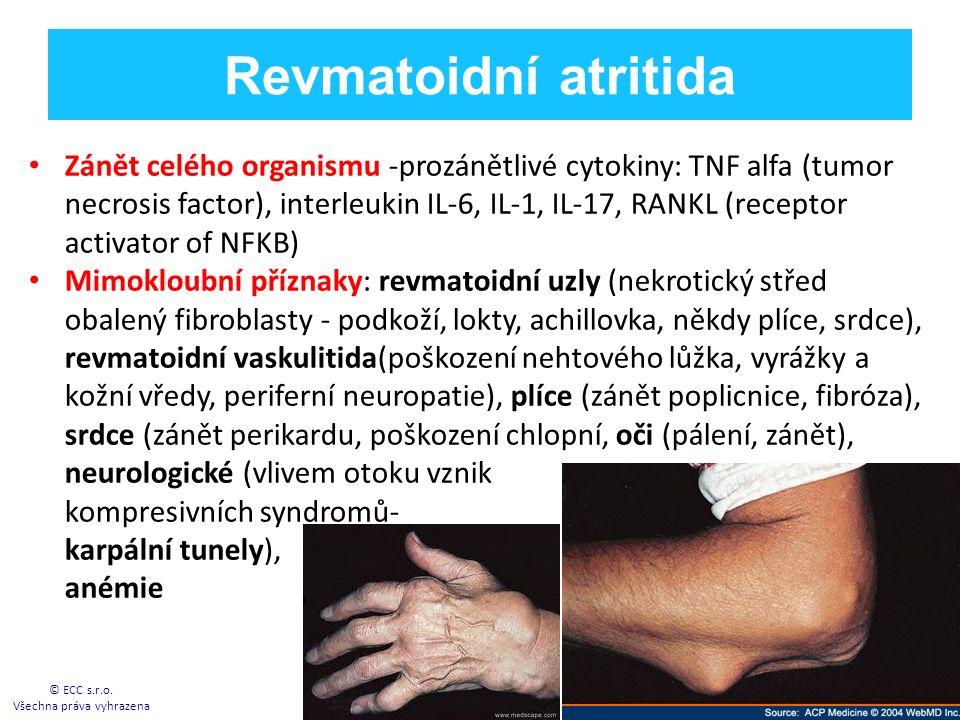 Revmatoidní atritida Zánět celého organismu -prozánětlivé cytokiny: TNF alfa (tumor necrosis factor), interleukin IL-6, IL-1, IL-17, RANKL (receptor activator of NFKB) Mimokloubní příznaky: revmatoidní uzly (nekrotický střed obalený fibroblasty - podkoží, lokty, achillovka, někdy plíce, srdce), revmatoidní vaskulitida(poškození nehtového lůžka, vyrážky a kožní vředy, periferní neuropatie), plíce (zánět poplicnice, fibróza), srdce (zánět perikardu, poškození chlopní, oči (pálení, zánět), neurologické (vlivem otoku vznik kompresivních syndromů- karpální tunely), anémie © ECC s.r.o.