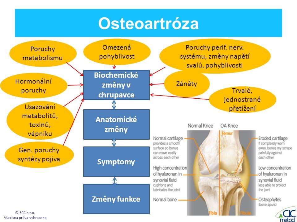 Osteoartróza © ECC s.r.o.