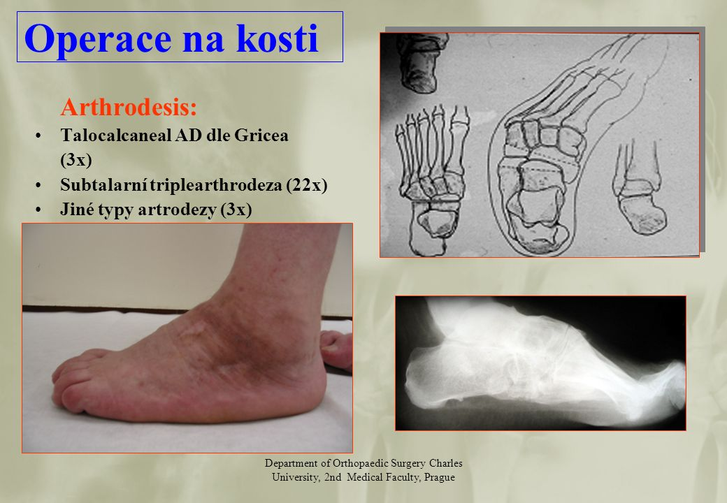 Department of Orthopaedic Surgery Charles University, 2nd Medical Faculty, Prague Arthrodesis: Talocalcaneal AD dle Gricea (3x) Subtalarní triplearthrodeza (22x) Jiné typy artrodezy (3x) Operace na kosti