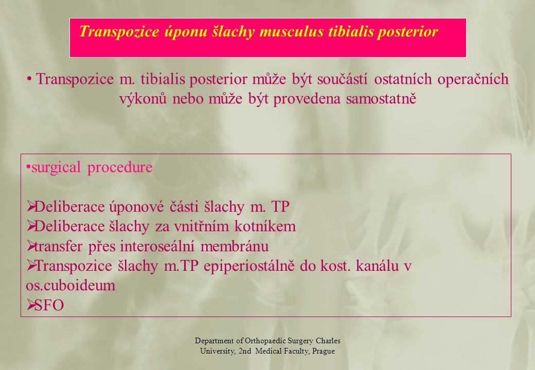 Department of Orthopaedic Surgery Charles University, 2nd Medical Faculty, Prague Transpozice m.