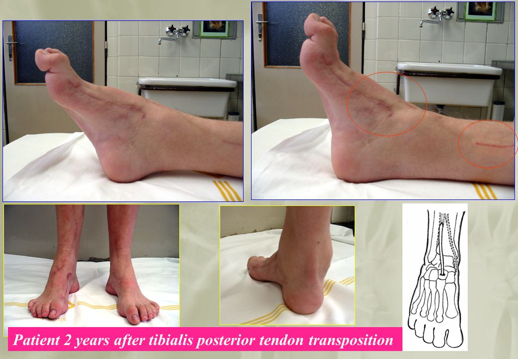 Department of Orthopaedic Surgery Charles University, 2nd Medical Faculty, Prague Patient 2 years after tibialis posterior tendon transposition
