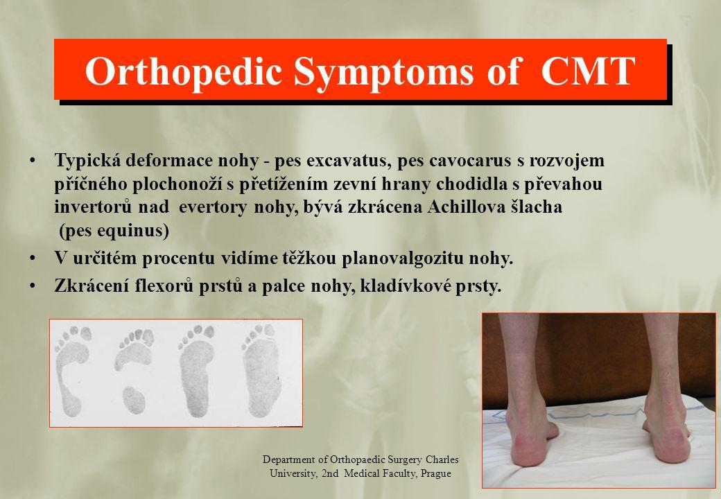 Department of Orthopaedic Surgery Charles University, 2nd Medical Faculty, Prague Transpozice m.