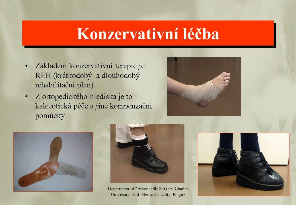 Department of Orthopaedic Surgery Charles University, 2nd Medical Faculty, Prague Konzervativní léčba Základem konzervativní terapie je REH (krátkodob