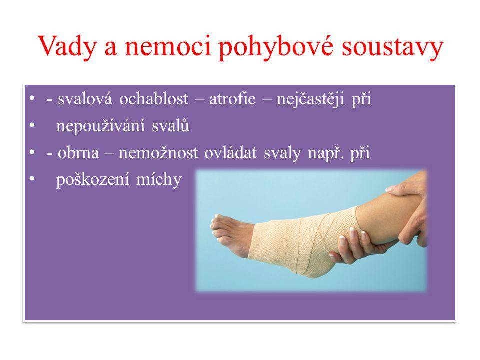 Vady a nemoci pohybové soustavy - svalová ochablost – atrofie – nejčastěji při nepoužívání svalů - obrna – nemožnost ovládat svaly např. při poškození