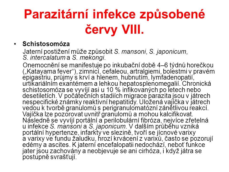 Parazitární infekce způsobené červy VIII. Schistosomóza Jaterní postižení může způsobit S.
