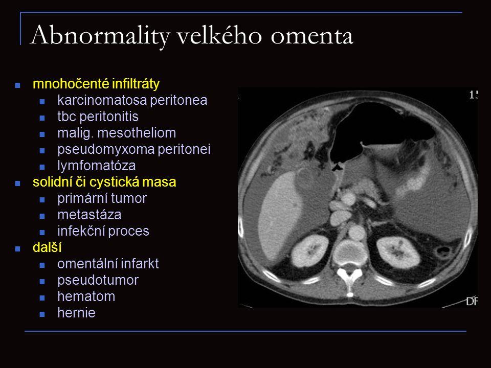 Abnormality velkého omenta mnohočenté infiltráty karcinomatosa peritonea tbc peritonitis malig. mesotheliom pseudomyxoma peritonei lymfomatóza solidní