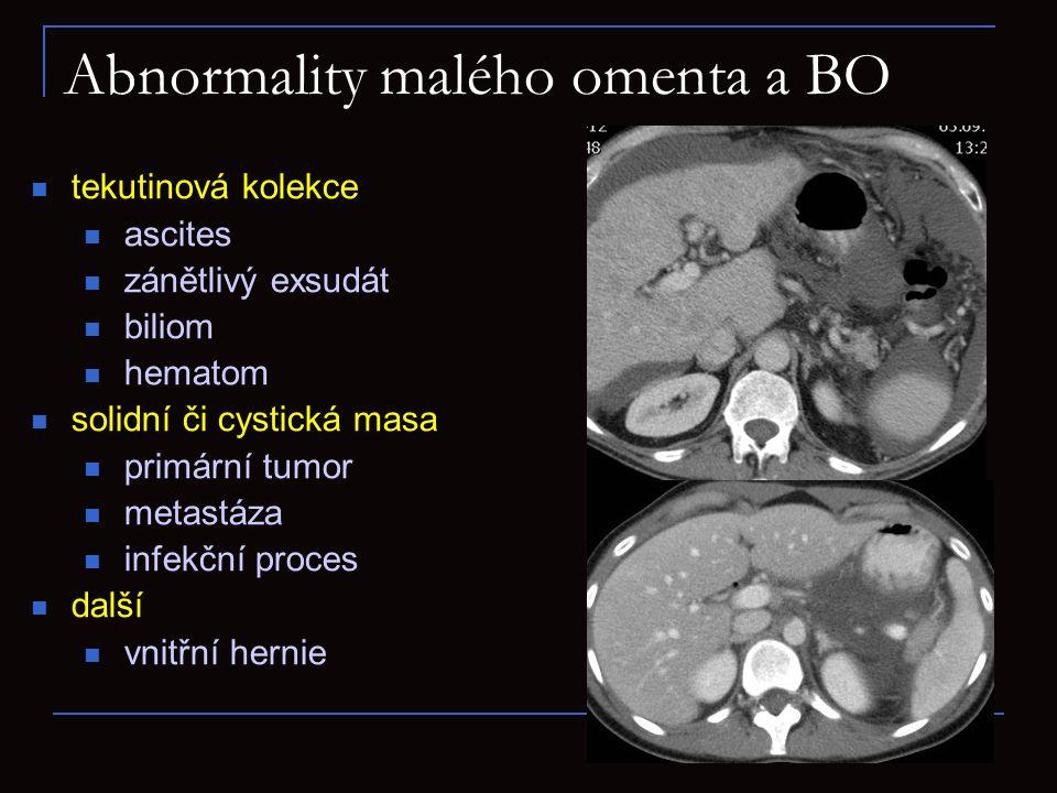 Abnormality malého omenta a BO tekutinová kolekce ascites zánětlivý exsudát biliom hematom solidní či cystická masa primární tumor metastáza infekční