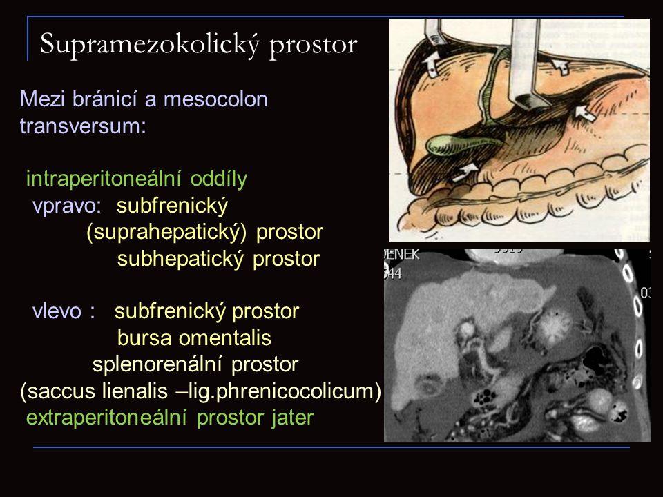 V ileocékální oblasti recessus retrocaecalis (může obsahovat appendix) r.