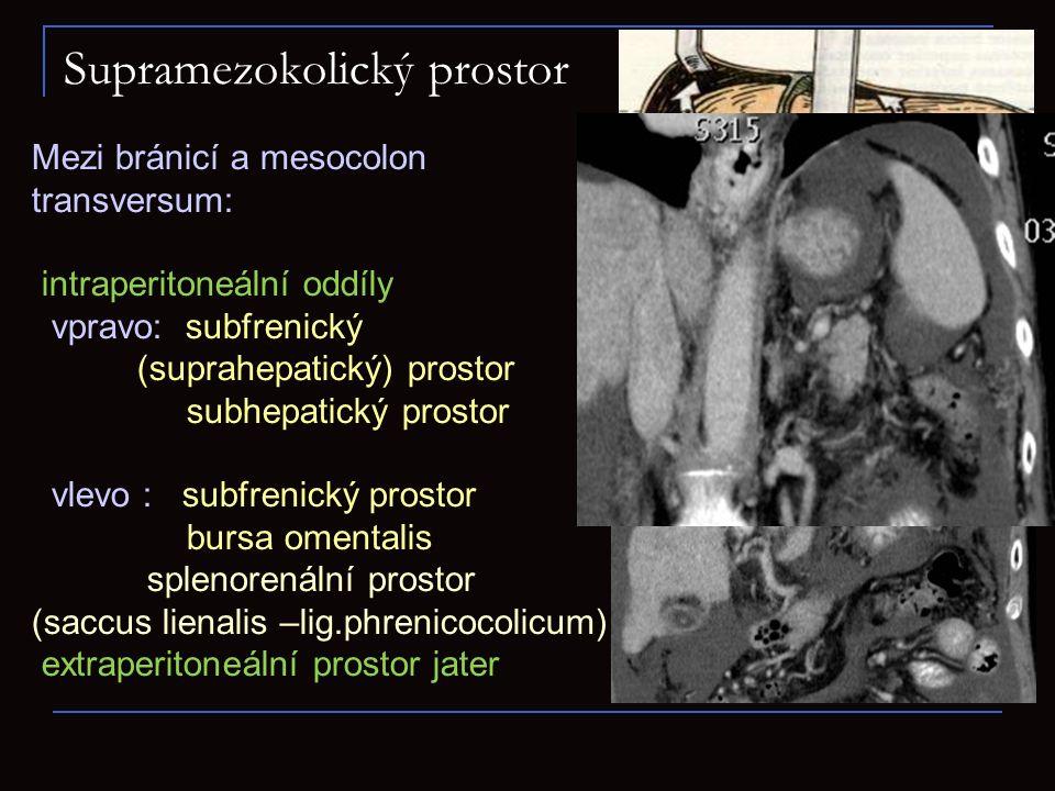 Supramezokolický prostor Mezi bránicí a mesocolon transversum: intraperitoneální oddíly vpravo: subfrenický (suprahepatický) prostor subhepatický pros