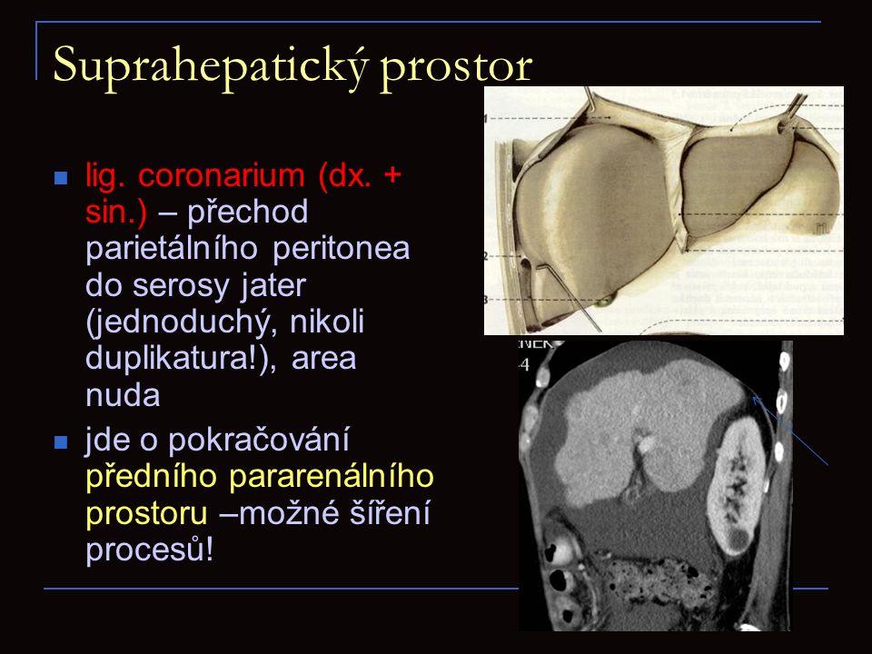 Suprahepatický prostor lig. coronarium (dx. + sin.) – přechod parietálního peritonea do serosy jater (jednoduchý, nikoli duplikatura!), area nuda jde