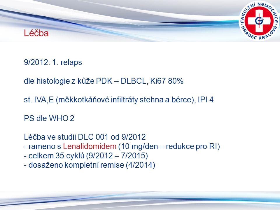 10 Léčba 9/2012: 1. relaps dle histologie z kůže PDK – DLBCL, Ki67 80% st. IVA,E (měkkotkáňové infiltráty stehna a bérce), IPI 4 PS dle WHO 2 Léčba ve
