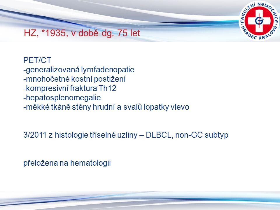 3 HZ, *1935, v době dg. 75 let PET/CT -generalizovaná lymfadenopatie -mnohočetné kostní postižení -kompresivní fraktura Th12 -hepatosplenomegalie -měk