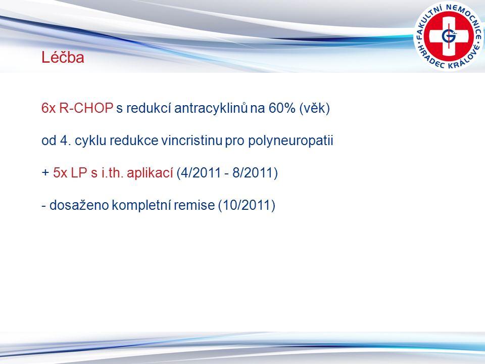 7 Léčba 6x R-CHOP s redukcí antracyklinů na 60% (věk) od 4. cyklu redukce vincristinu pro polyneuropatii + 5x LP s i.th. aplikací (4/2011 - 8/2011) -