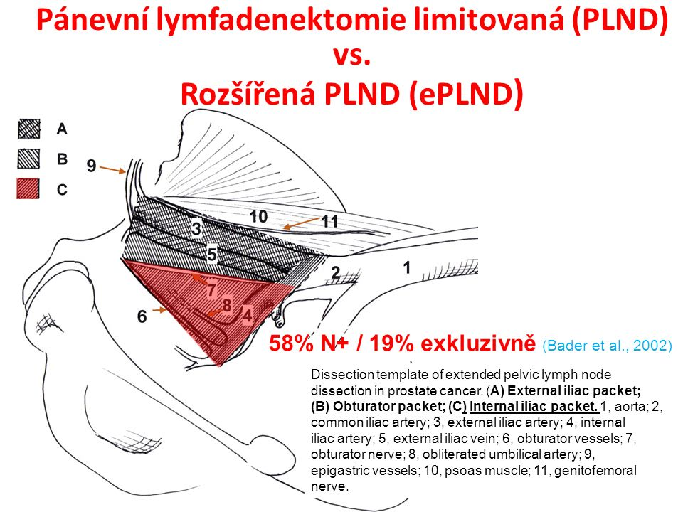 Dissection template of extended pelvic lymph node dissection in prostate cancer.