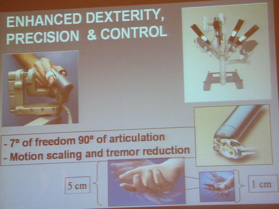 Možnosti daVinci Prakticky všechny typy urologických operací dříve rutinně prováděných otevřeně či klasickou laparoskopií byly provedeny roboticky.