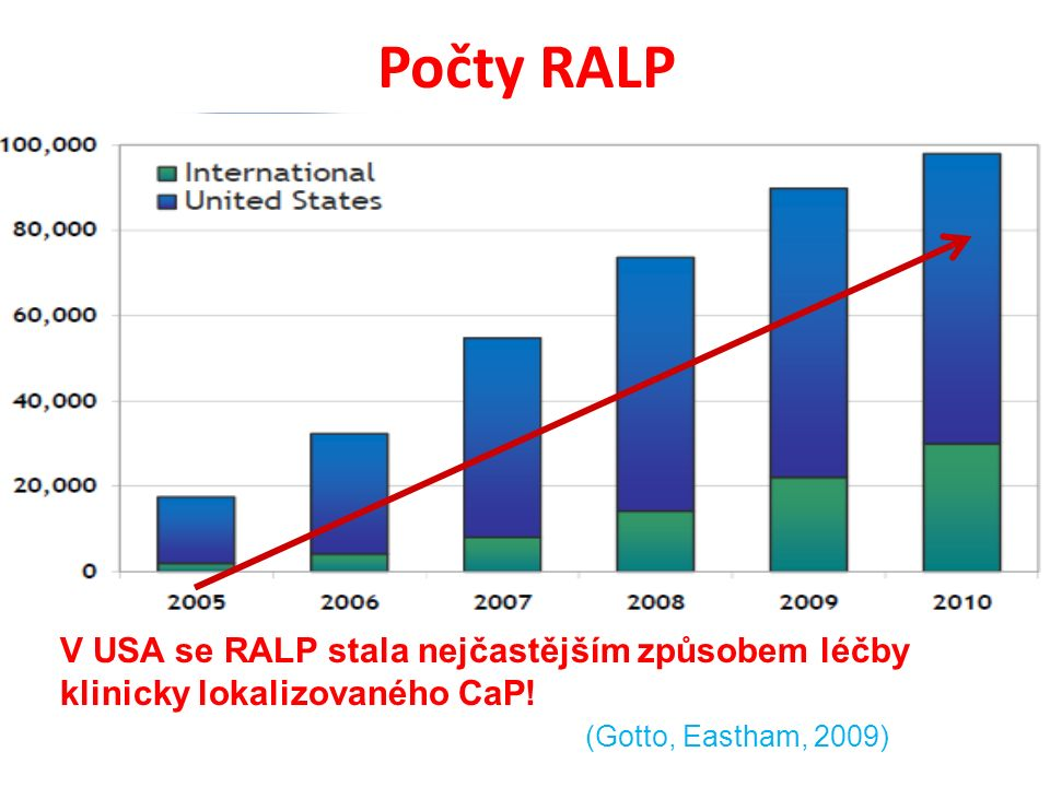 Počty RALP V USA se RALP stala nejčastějším způsobem léčby klinicky lokalizovaného CaP.