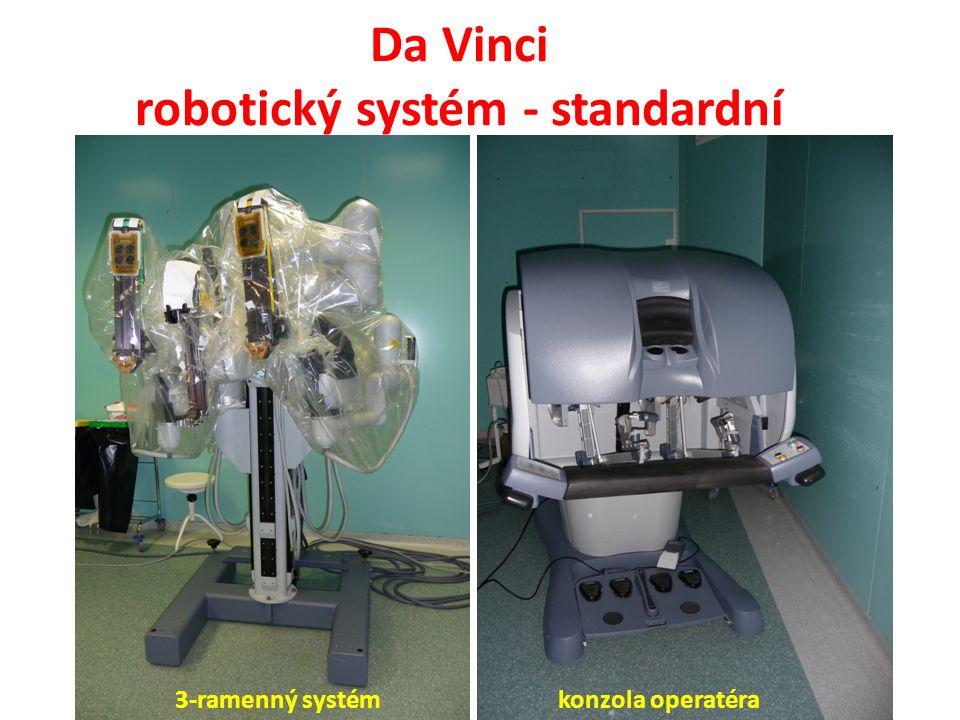 Závěry (1) Da Vinci robotický systém umožňuje technicky precizní, bezpečné, minimálně invazivní, ergonomické, provádění RP a rozšířené PLND Tomu odpovídá i nízká incidence pooperačních komplikací.