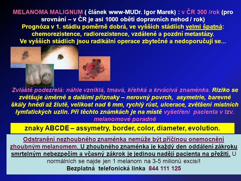 MELANOMA MALIGNUM ( článek www-MUDr. Igor Marek) : v ČR 300 /rok (pro srovnání – v ČR je asi 1000 obětí dopravních nehod / rok) Prognóza v 1. stádiu p