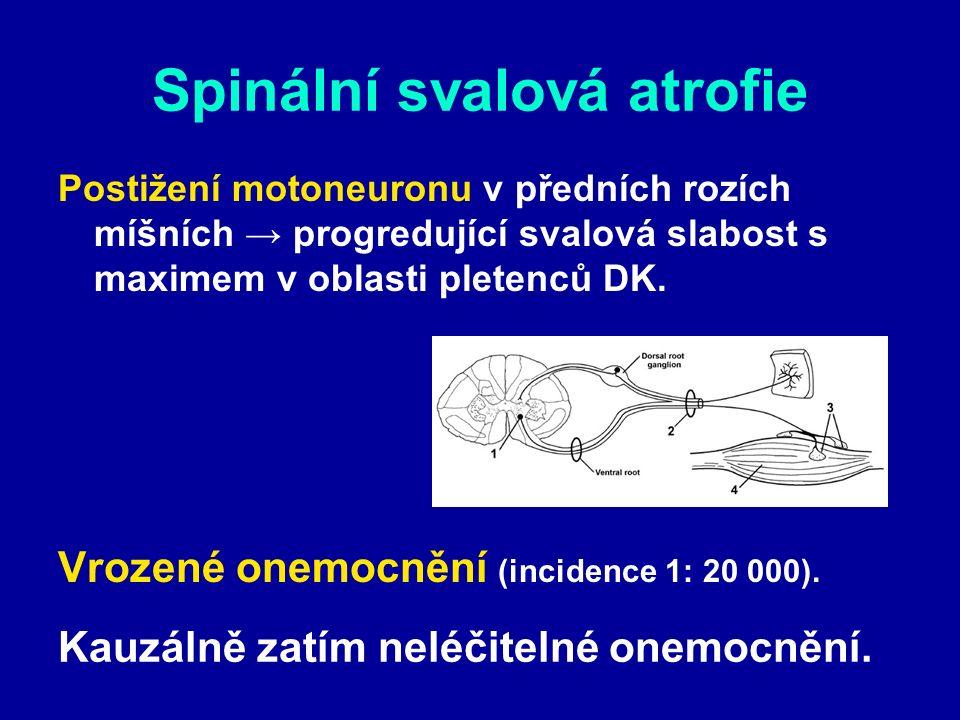 Spinální svalová atrofie Postižení motoneuronu v předních rozích míšních → progredující svalová slabost s maximem v oblasti pletenců DK. Vrozené onemo