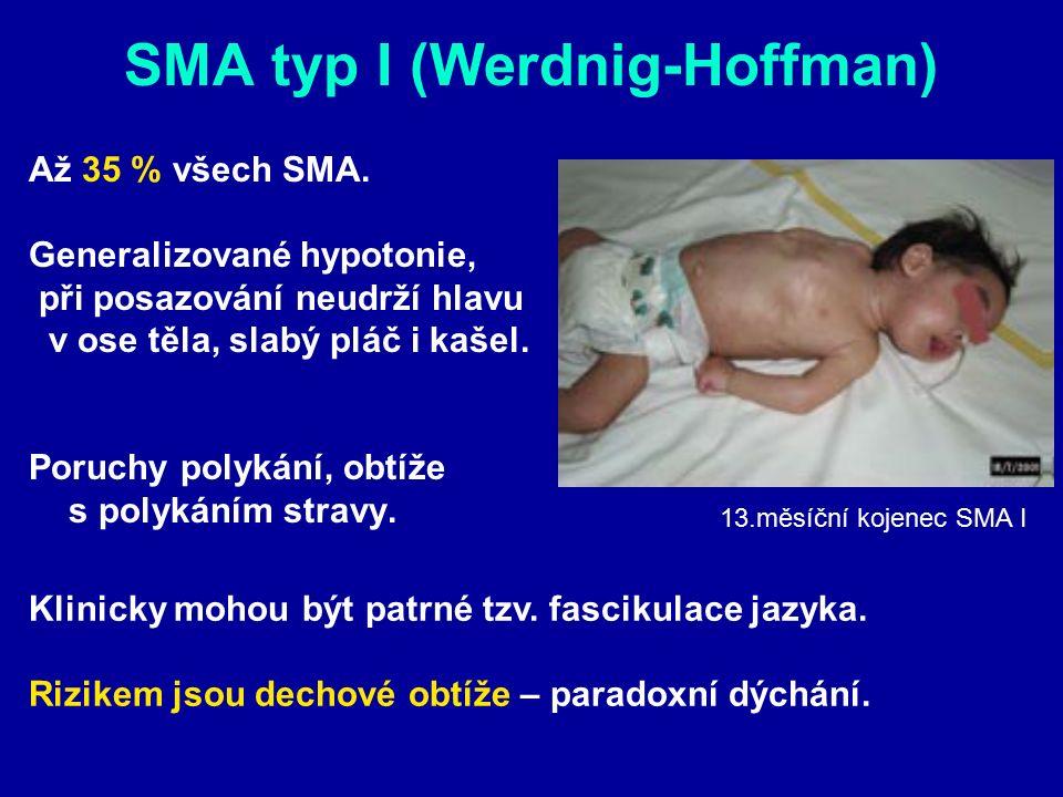 SMA typ I (Werdnig-Hoffman) Až 35 % všech SMA. Generalizované hypotonie, při posazování neudrží hlavu v ose těla, slabý pláč i kašel. Poruchy polykání