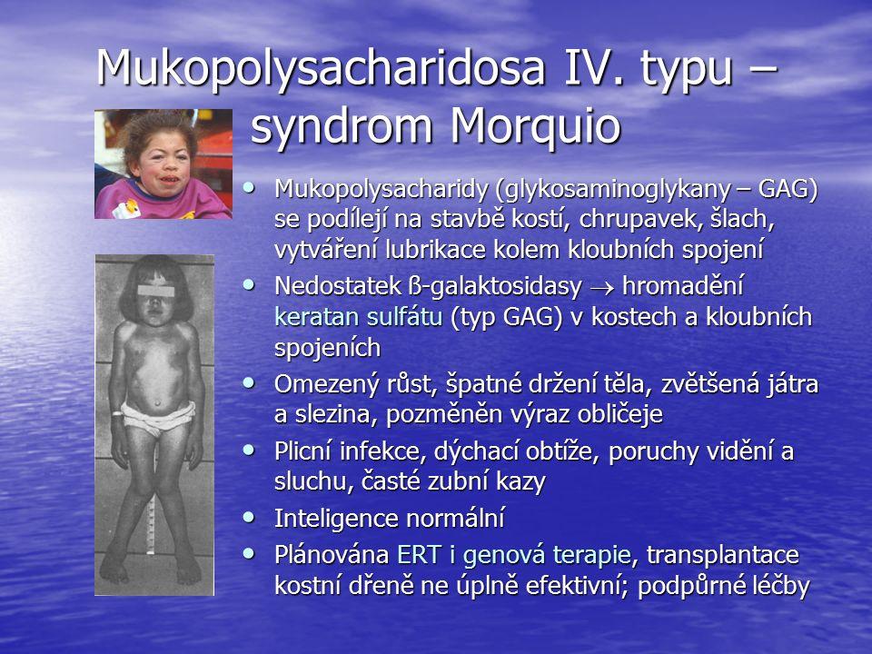 Mukopolysacharidosa IV.