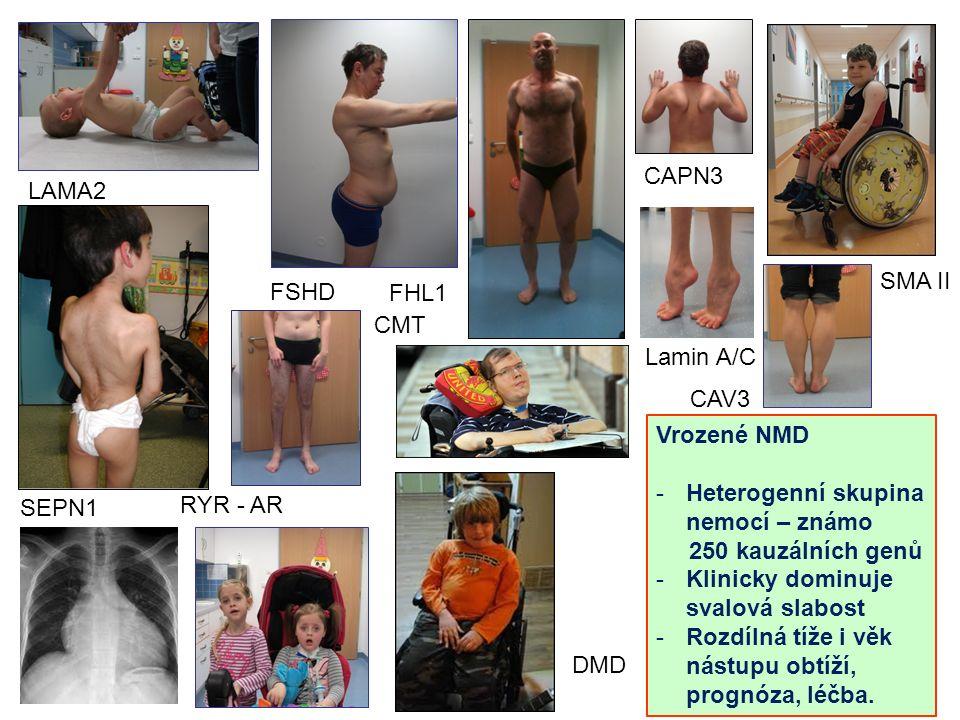 RYR - AR FSHD DMD FHL1 CAPN3 CAV3 LAMA2 SEPN1 SMA II CMT Lamin A/C Vrozené NMD -Heterogenní skupina nemocí – známo 250 kauzálních genů -Klinicky dominuje svalová slabost -Rozdílná tíže i věk nástupu obtíží, prognóza, léčba.