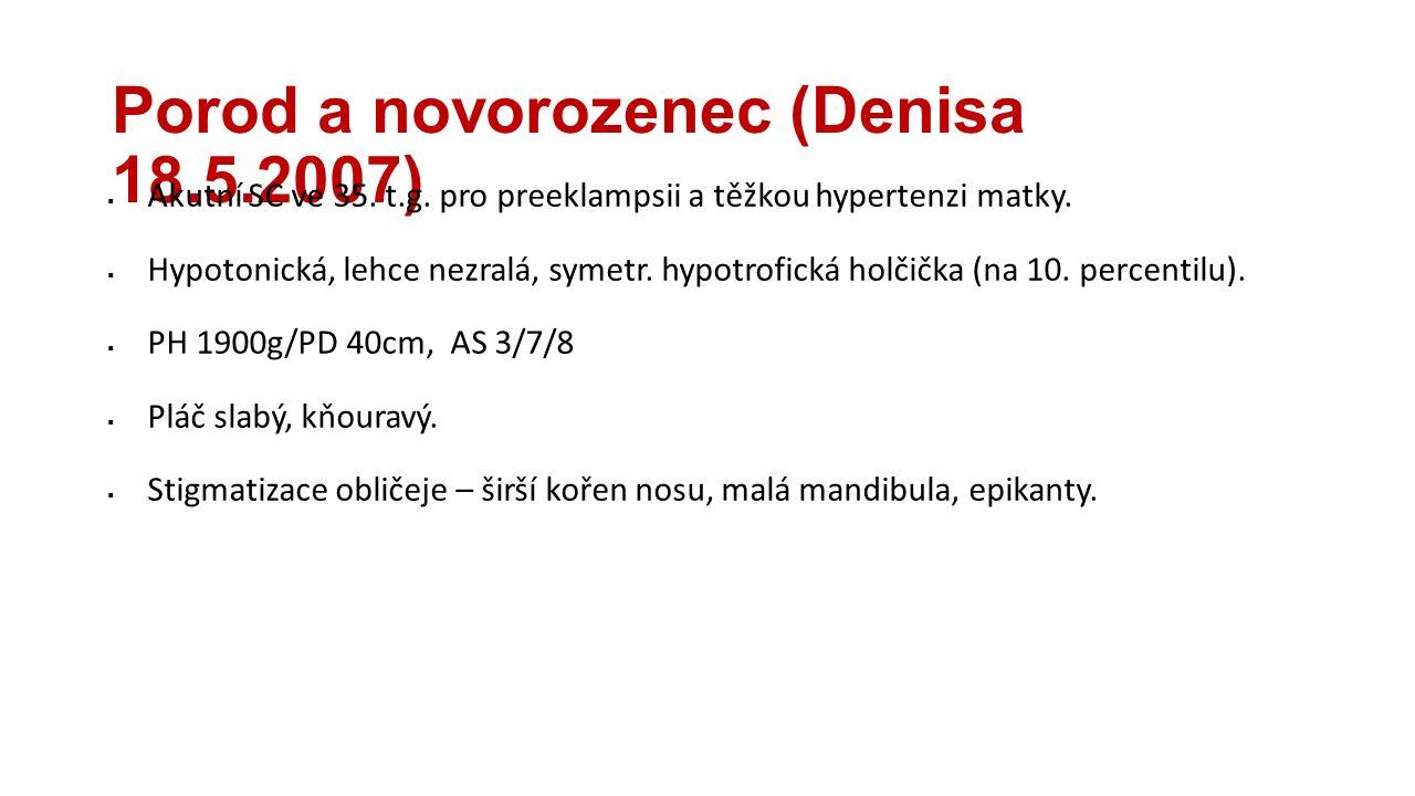 Porod a novorozenec (Denisa 18.5.2007)  Akutní SC ve 35. t.g. pro preeklampsii a těžkou hypertenzi matky.  Hypotonická, lehce nezralá, symetr. hypot
