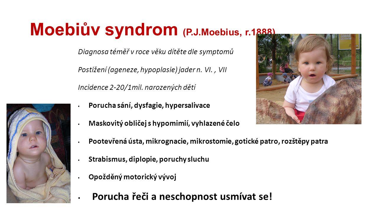 Moebiův syndrom (P.J.Moebius, r.1888) Diagnosa téměř v roce věku dítěte dle symptomů Postižení (ageneze, hypoplasie) jader n. VI., VII Incidence 2-20/