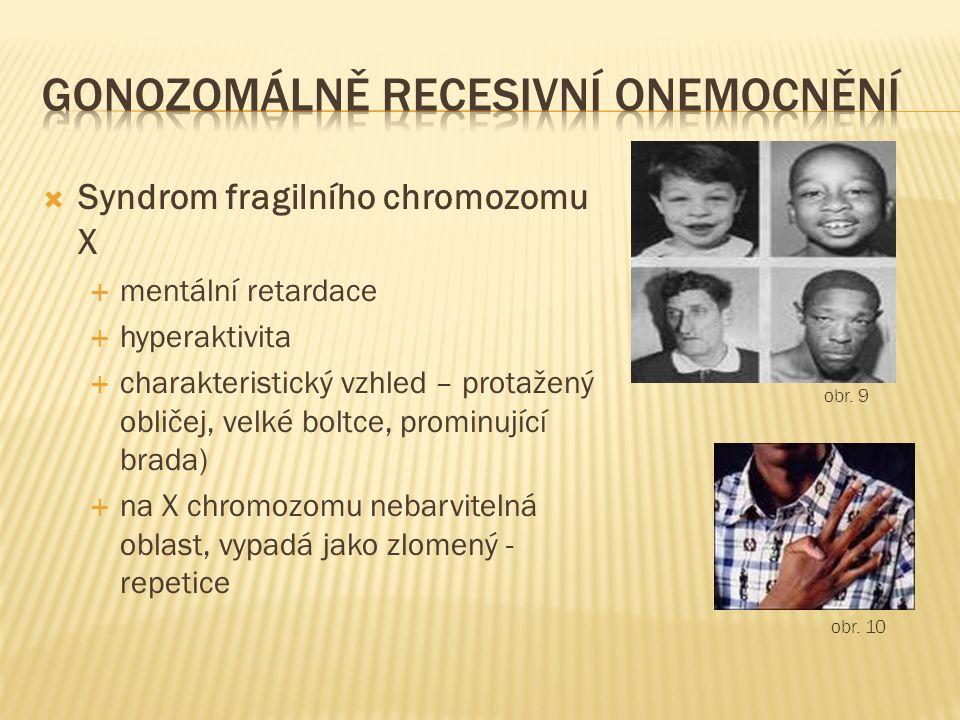  Syndrom fragilního chromozomu X  mentální retardace  hyperaktivita  charakteristický vzhled – protažený obličej, velké boltce, prominující brada)  na X chromozomu nebarvitelná oblast, vypadá jako zlomený - repetice obr.