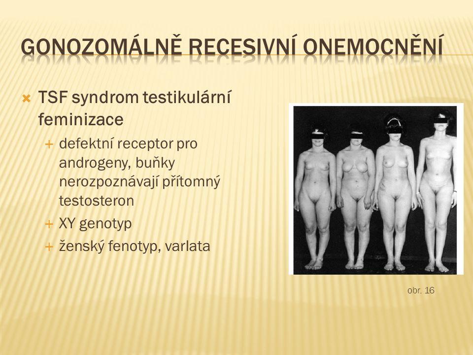  TSF syndrom testikulární feminizace  defektní receptor pro androgeny, buňky nerozpoznávají přítomný testosteron  XY genotyp  ženský fenotyp, varlata obr.