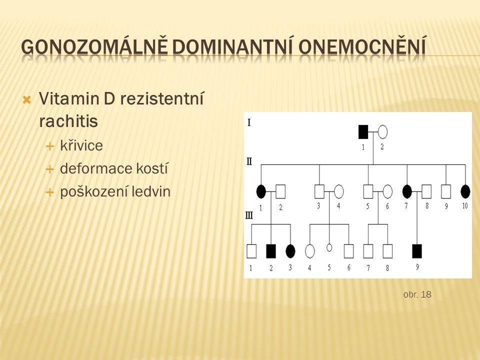  Vitamin D rezistentní rachitis  křivice  deformace kostí  poškození ledvin obr. 18