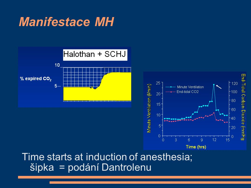 Manifestace MH Time starts at induction of anesthesia; šipka = podání Dantrolenu