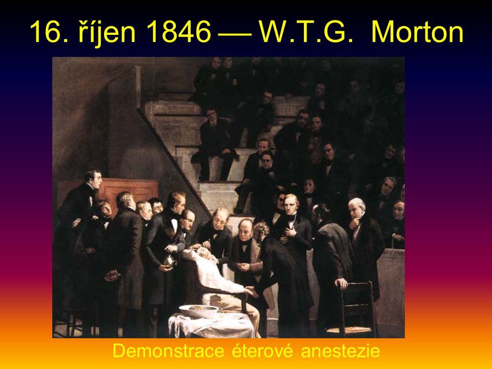 16. říjen 1846  W.T.G. Morton Demonstrace éterové anestezie