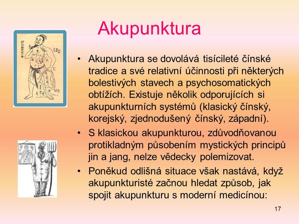 17 Akupunktura Akupunktura se dovolává tisícileté čínské tradice a své relativní účinnosti při některých bolestivých stavech a psychosomatických obtíž
