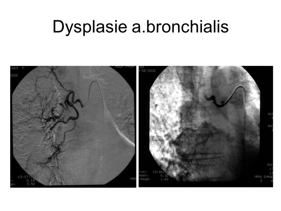 Dysplasie a.bronchialis