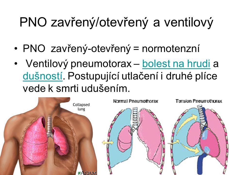 PNO zavřený/otevřený a ventilový PNO zavřený-otevřený = normotenzní Ventilový pneumotorax – bolest na hrudi a dušností. Postupující utlačení i druhé p