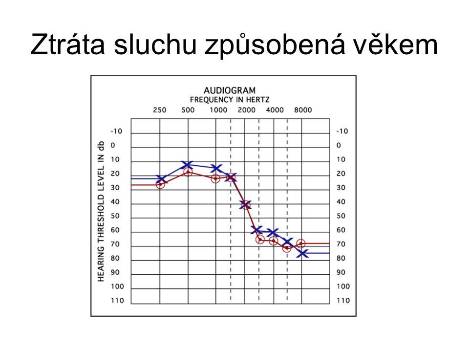 Frekvenční závislost doby dozvuku u vybraných pražských chrámů