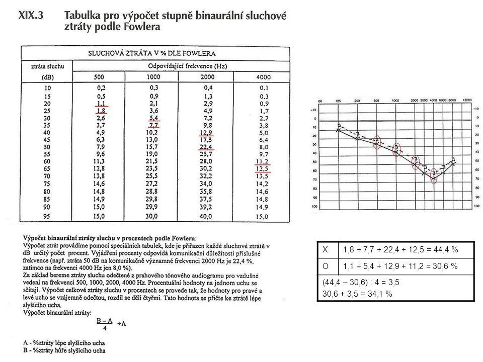 Základní veličiny Akustický výkon W (W) = veličina popisující zdroj hluku Akustický tlak P (Pa) = změna tlaku vzduchu.