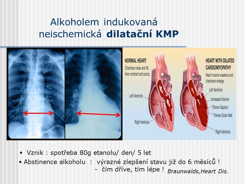 Alkoholem indukovaná neischemická dilatační KMP  Abstinence alkoholu : výrazné zlepšení stavu již do 6 měsíců .