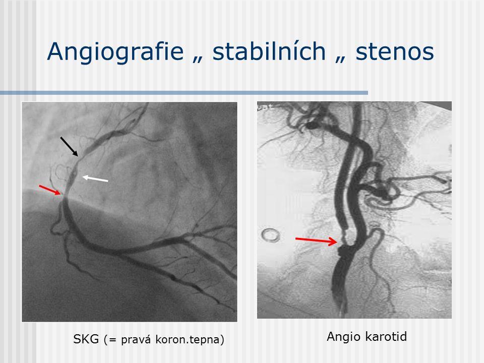 """Angiografie """" stabilních """" stenos SKG (= pravá koron.tepna) Angio karotid"""